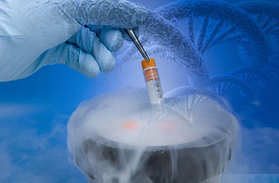 sperm freezing - Fecondazione eterologa in Italia: via libera