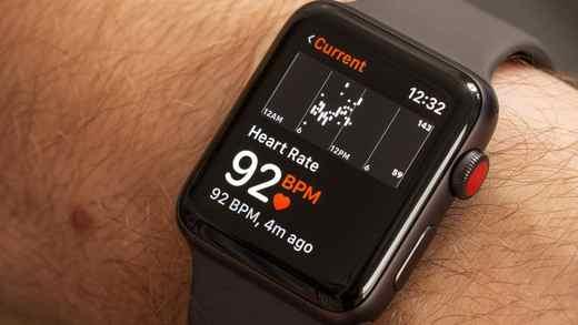 quale smartwatch