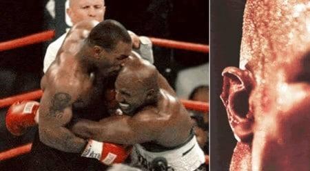 Tyson contro Holyfield stacca un pezzo di cartilagine