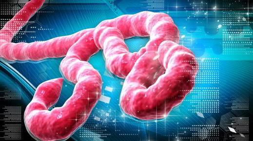 L'ebola il virus che uccide