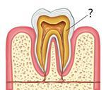 Risposta dentina