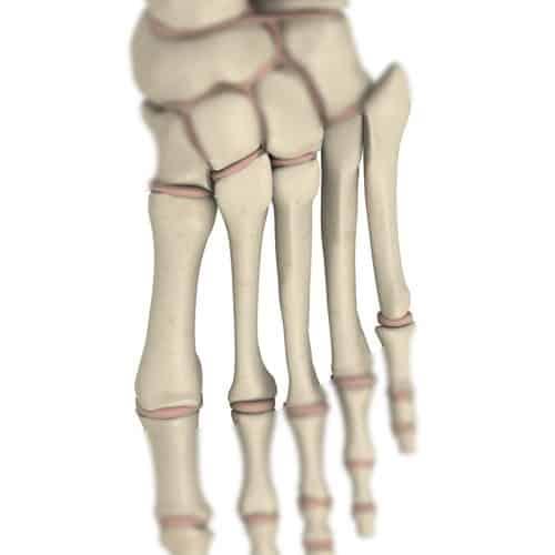 Anatomia answer: METATARSO
