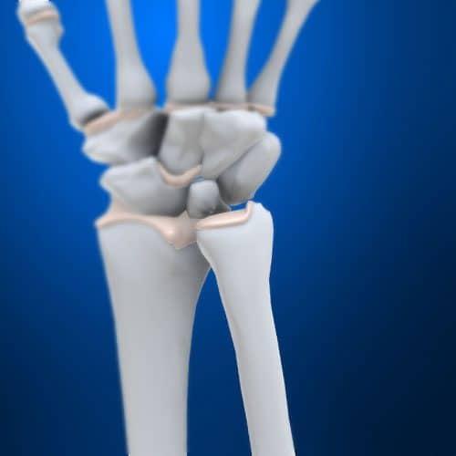 Anatomia answer: ULNA
